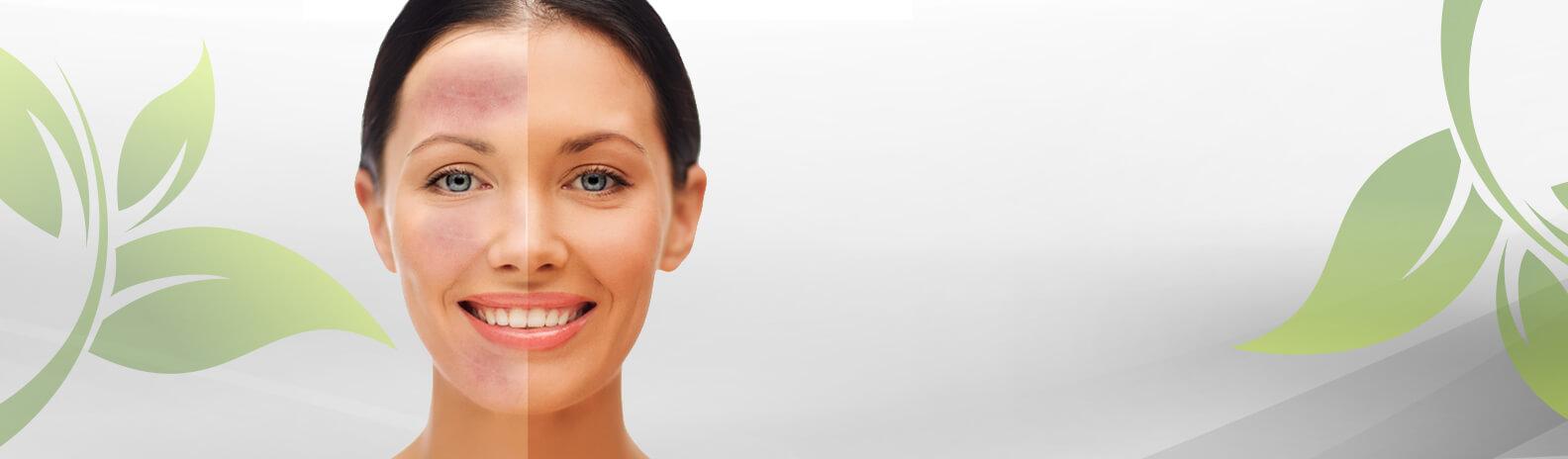 טיפולים ממוקדים לרוזציאה, אקנה רוזציאה ואודם בעור הפנים
