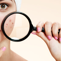 רוזציאה ופצעונים בעור