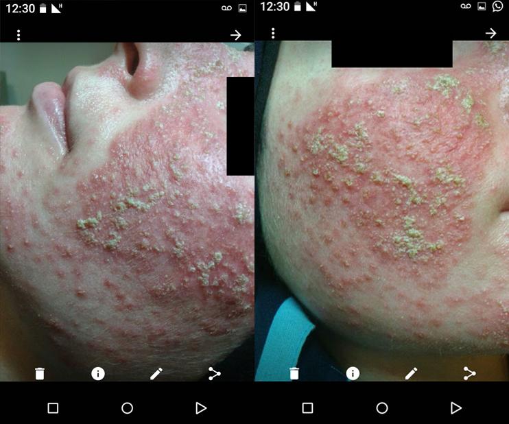 תסמונת הגמילה מסטרואידים ותופעת הריבאונד- שימוש ממושך בסטרואידים והפסקתם עלול להחמיר את האדמומיות בעור