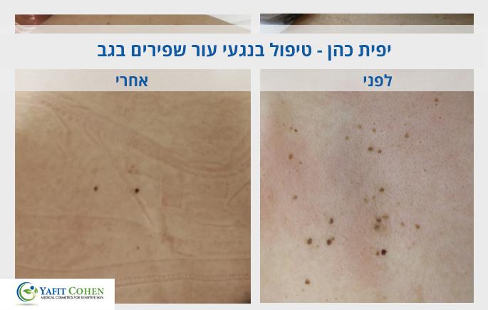 טיפול-בנגעי-עור-שפירים-בגב