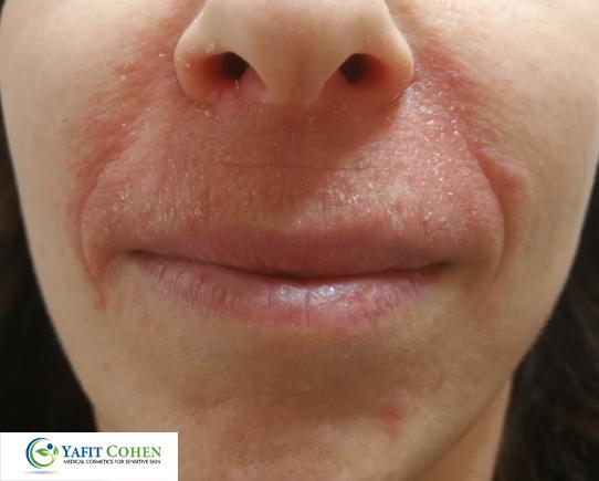 אדמומיות מפושטת בעור כתוצאה משימוש במשחה סטרואידית אלוקום